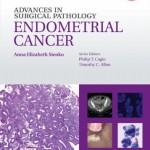 Advances in Surgical Pathology: Endometrial Carcinoma
