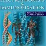 Electrophoresis and Immunofixation