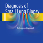 Diagnosis of Small Lung Biopsy                                                    :                             An Integrated Approach