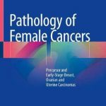 Pathology of Female Cancers : Precursor and Early-Stage Breast, Ovarian and Uterine Carcinomas